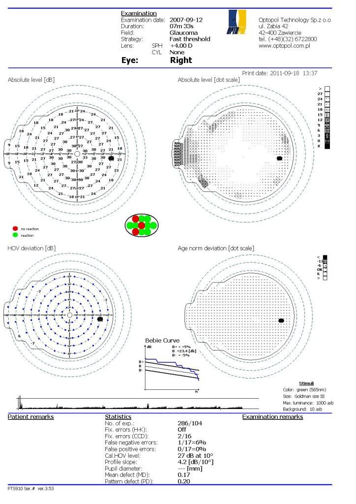 stadiul glaucomului după câmp vizual efectul statinelor asupra vederii